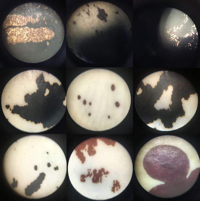 Beans through the microscope